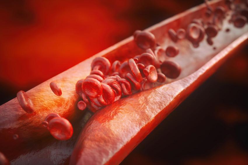 białko miażdzyca
