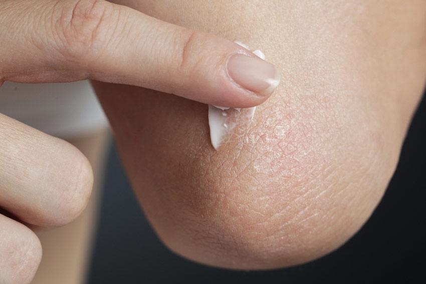 sucha skóra na łokciach
