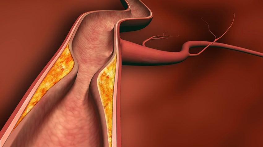 sterydy tętnice