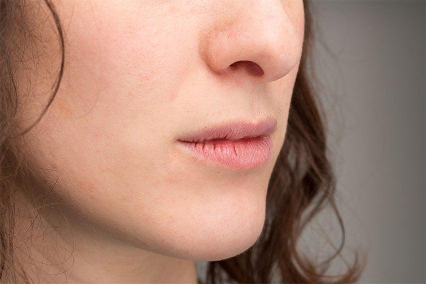 pękające usta