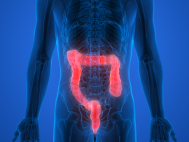 Co należy jeść, aby zmniejszyć ryzyko zachorowania na raka jelita grubego?