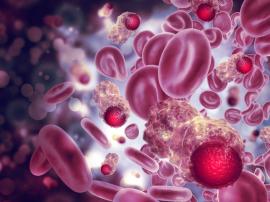 5 zaskakujących czynników, które mogą zwiększyć zachorowanie na raka