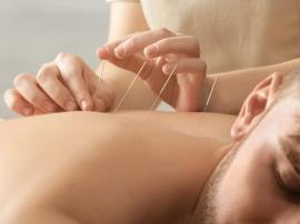 Co daje akupunktura, czy akupunktura leczy i pomaga?