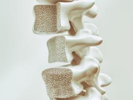 5 faktów dotyczących osteoporozy. Osteoporoza - trening i suplementacja