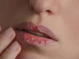 Spierzchnięte i pękające usta nie tylko wyglądają
