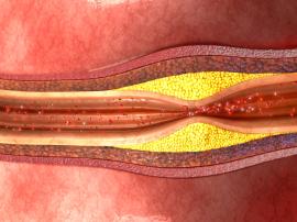 Istota problemu Miażdżyca tętnic nazywana jest wy