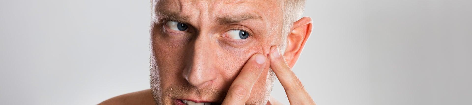 4 suplementy wspomagające walkę z trądzikiem