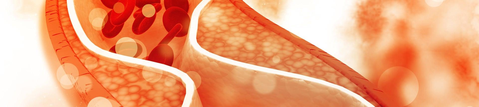 Niski cholesterol zabija? Kiedy jest groźny?