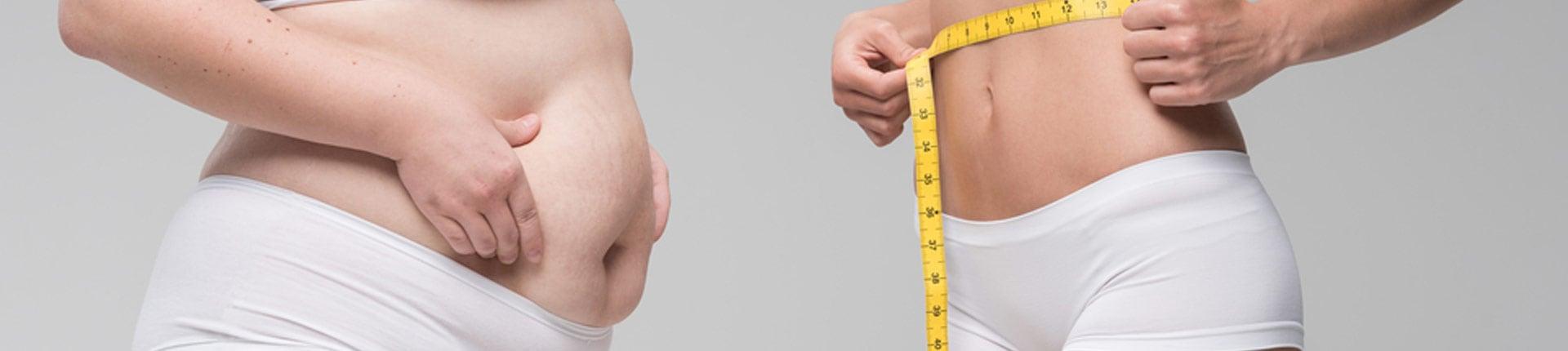 Liposukcja czy ominięcie żołądkowo jelitowe, a może hormon wzrostu lub Adipex - co lepsze?