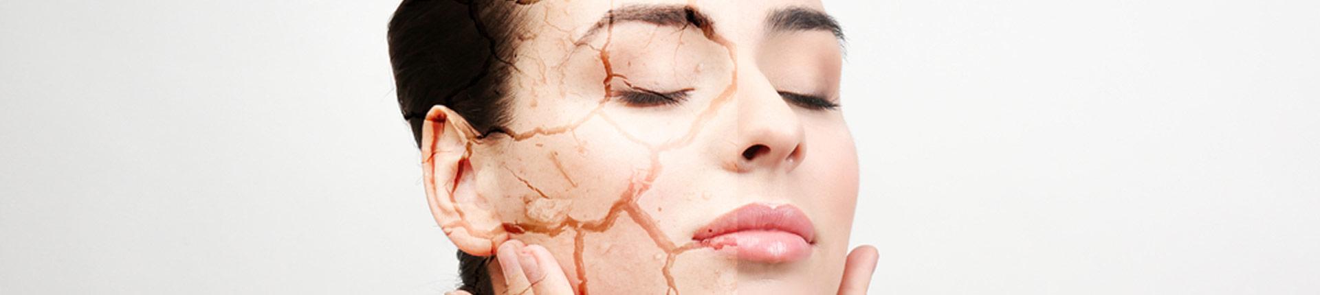 Najlepsze suplementy diety na suchą skórę
