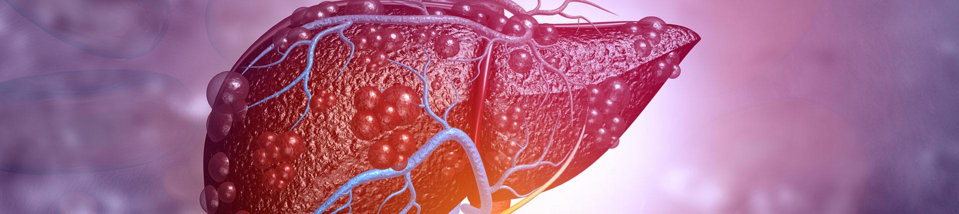 Niealkoholowa stłuszczeniowa choroba wątroby NAFL