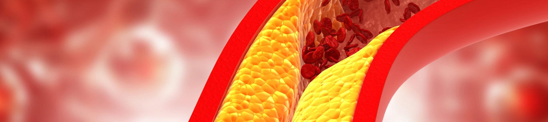 Czy witamina C obniża poziom cholesterolu?