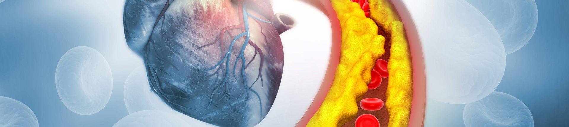 Czy witamina D3 obniża cholesterol?