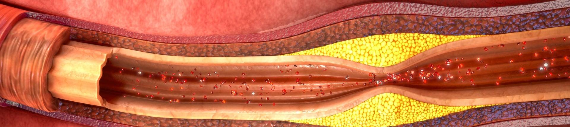 Miażdżyca tętnic - poznaj przyczyny i objawy