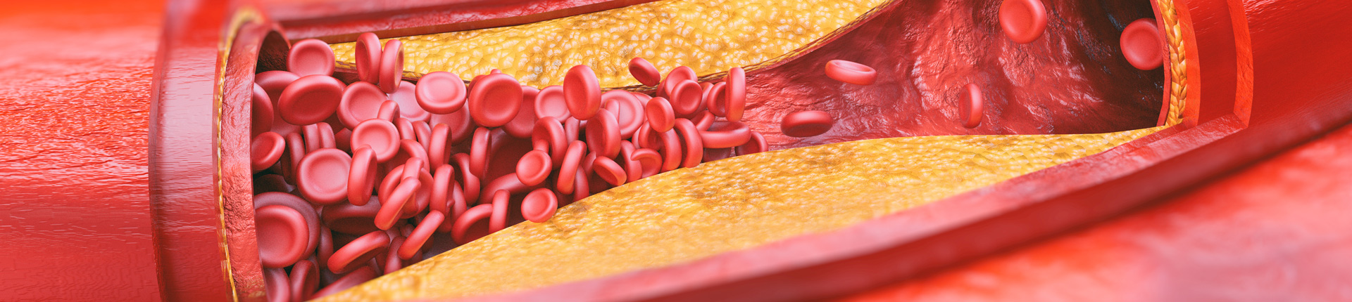 Cholesterol: zabójca czy sprzymierzeniec?