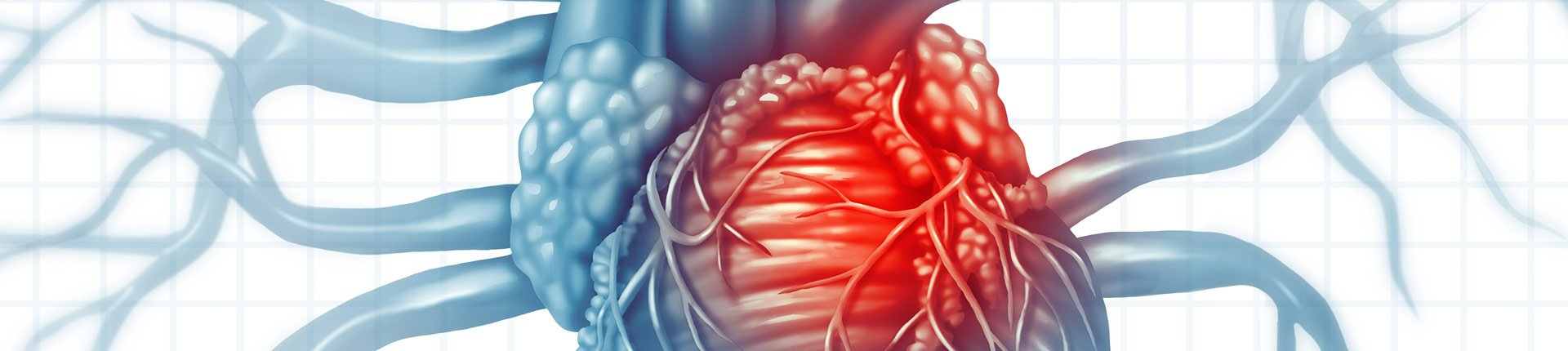 Kalcyfikacja tkanek miękkich (zwapnienie)
